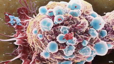 """Cancer-killing """"sticky balls"""" containing cancer-killing protein called Trail"""