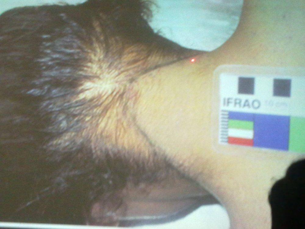 Forensic Medicine OSPE Slides - BATCH 38 (4/6)