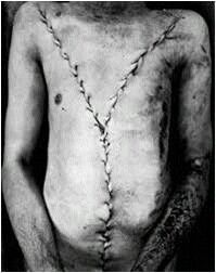 Y- SHAPED INCISION
